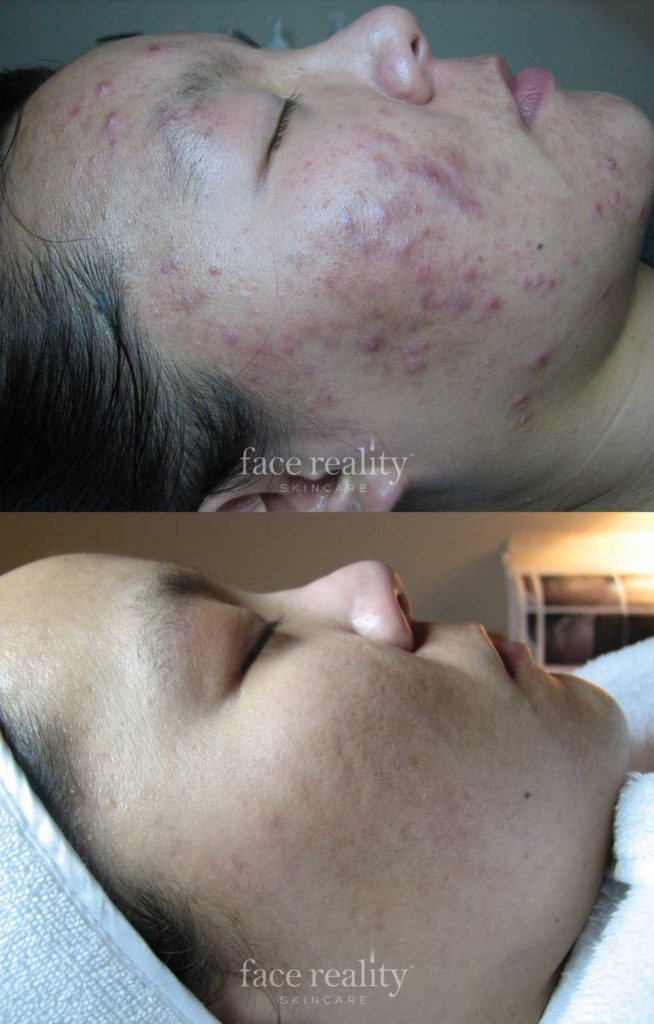 Before and after image of face reality acne treatment